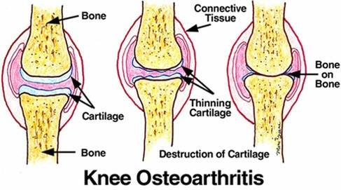 Arthritic joints