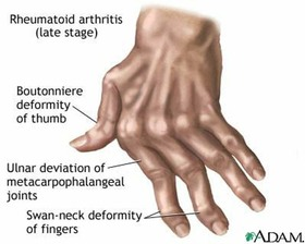 Athritic hands