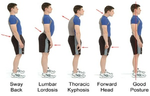 Standing Posture variations