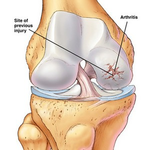knee arthrosis